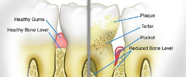 """Best Periodontal Gum Disease Specialists in Manhattan,NYC"""
